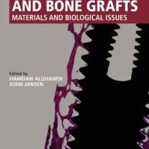 Dental Implants and Bone Grafts2020